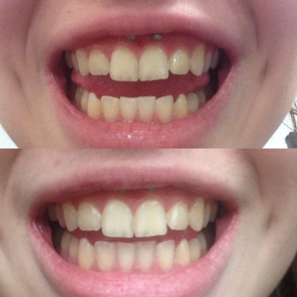 I Tried Diy Teeth Whitening And It Actually Worked
