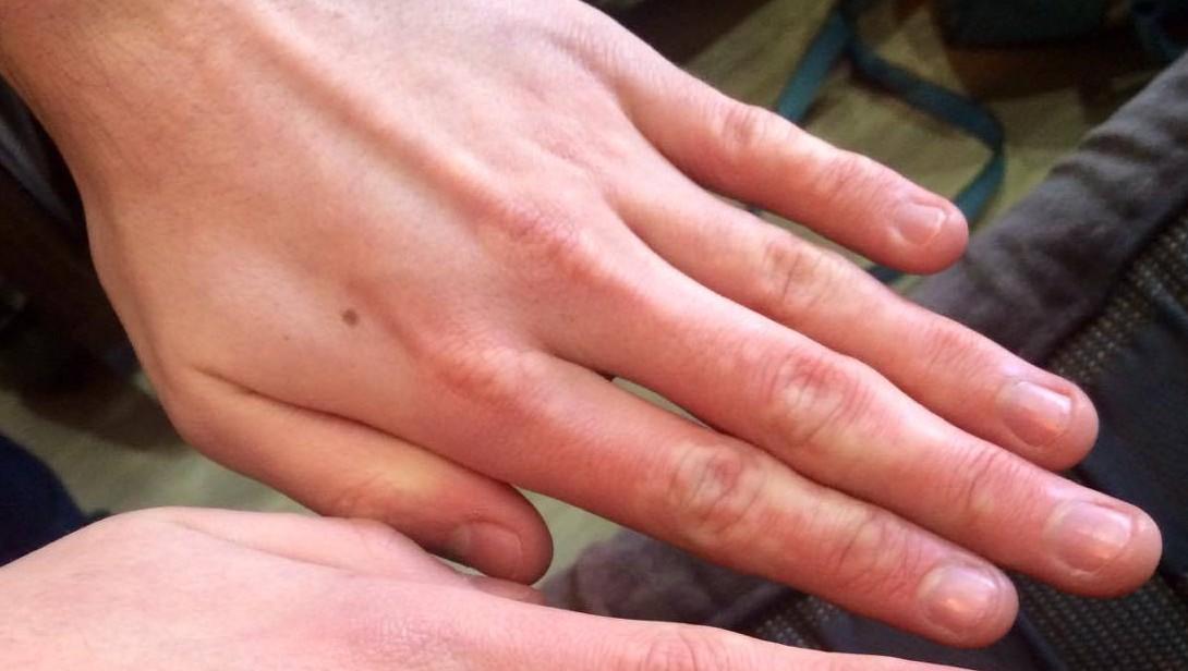Cold Urticaria Hands I have cold urticaria ...