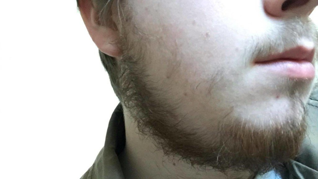 patchy beard facial hair