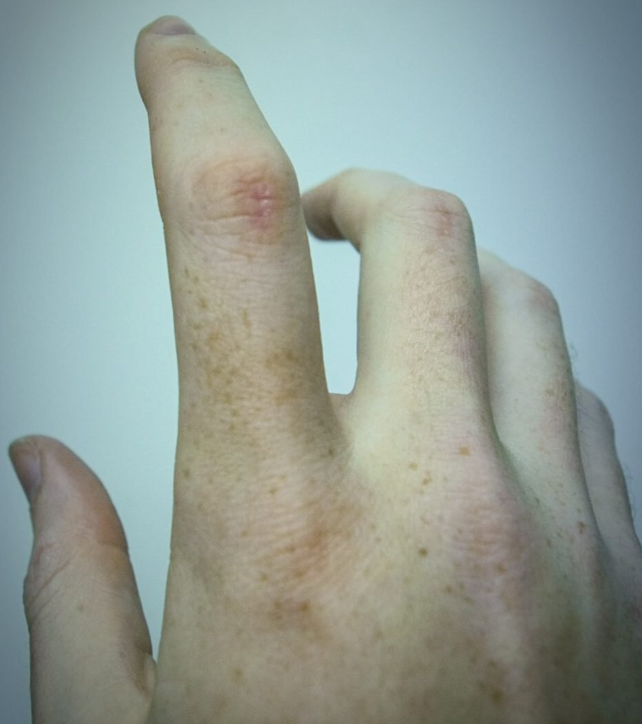 A small scar housed on my index's second knuckle, almost invisible, yet represents years of self-degradation