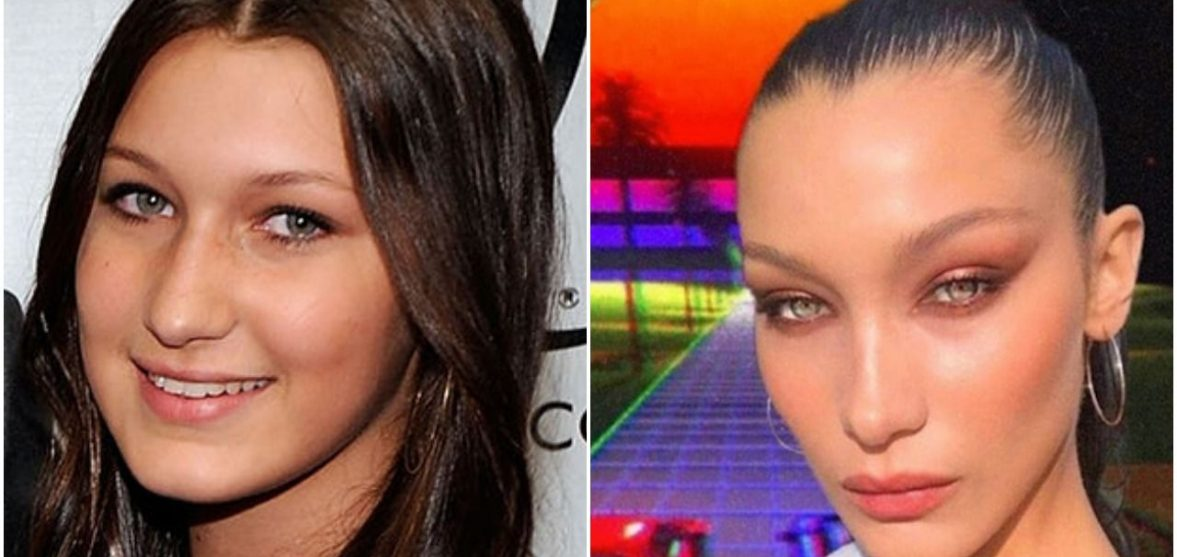 Before and After: Bella Hadid's plastic surgery and ever-changing face