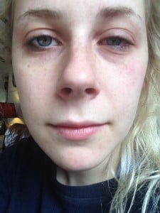 Swollen eyes are a symptom of conjunctivis