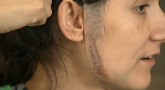 Scarred for life: The results of this horrific attack