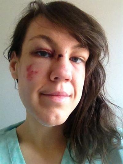 Teddy Hall student posted a selfie of her injuries to raise awareness of her attack