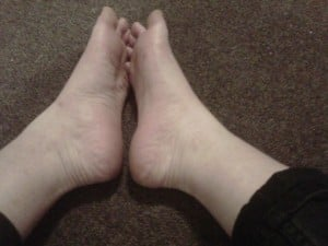 'Before' shot of my feet