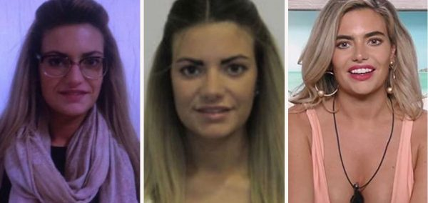 Megan Love Island Surgery: Timeline Of Her Face Since