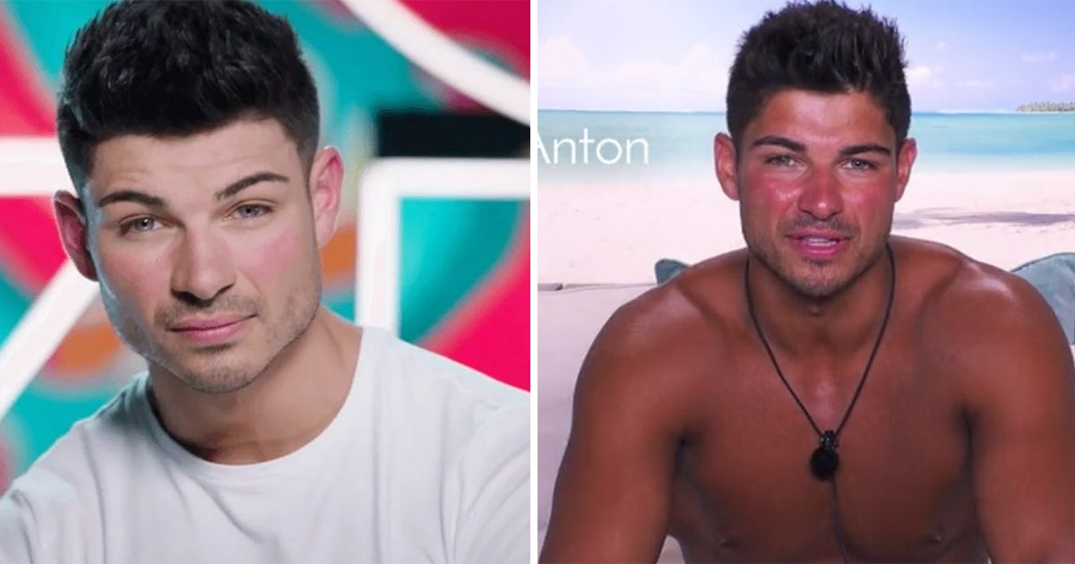 Image may contain: Love Island tans, Love Island, tan, burn, sun, before, after, tanformation, Anton, Boy, Accessories, Necklace, Accessory, Jewelry, Man, Face, Human, Person
