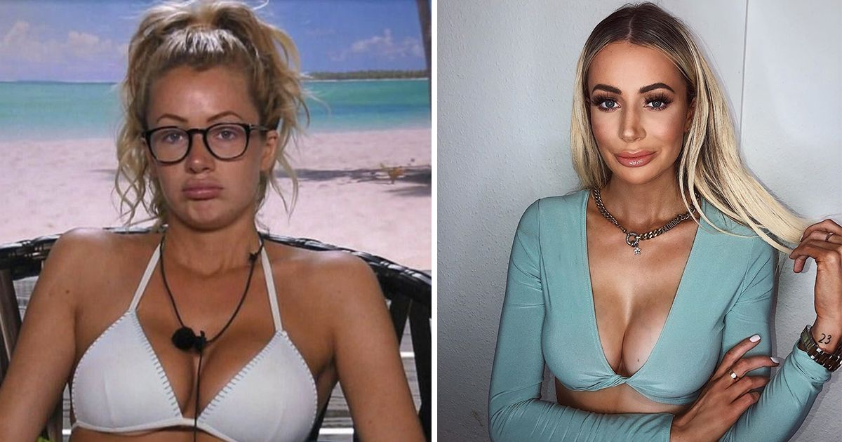 Image may contain: Love Island transformations, Love Island, 2017, series three, Olivia Attwood, then, now, before, after, plastic, cosmetic, surgery, filler, lips, boob job, veneers, teeth, glow up, change, Bikini, Photo, Photography, Portrait, Swimwear, Lingerie, Underwear, Child, Girl, Blonde, Teen, Kid, Accessory, Jewelry, Necklace, Accessories, Woman, Female, Face, Apparel, Clothing, Person, Human