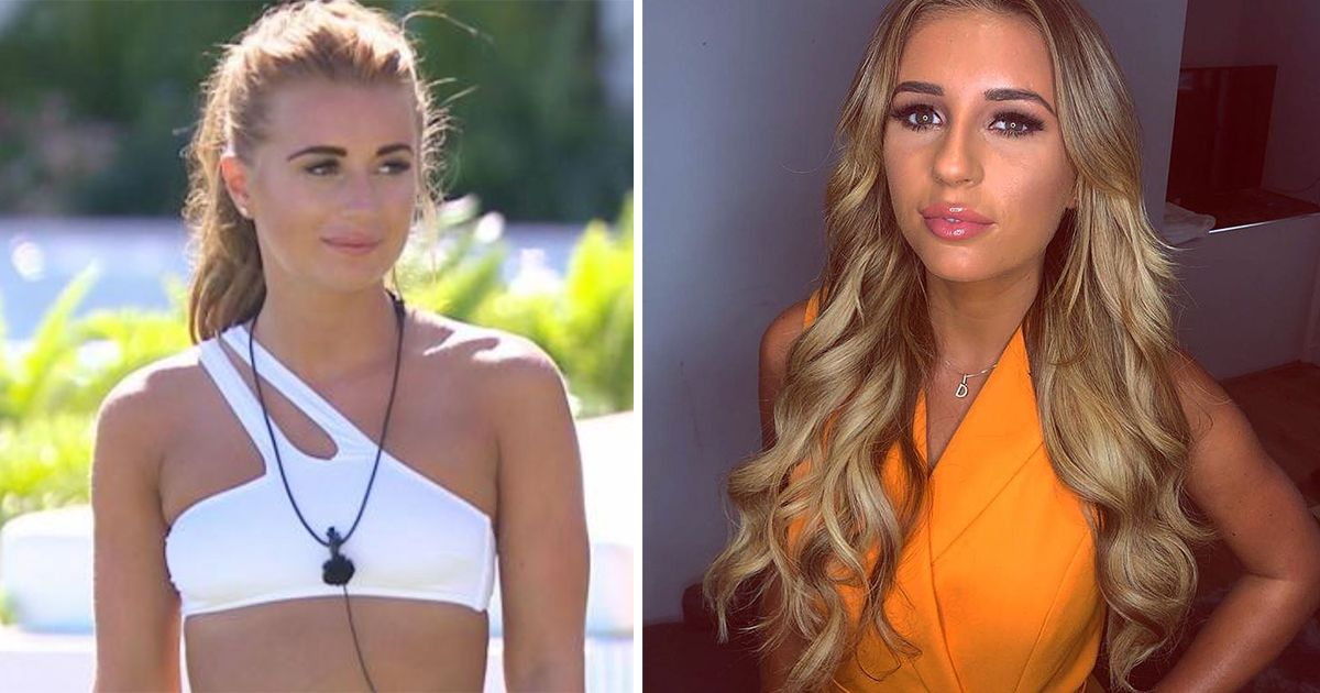 Image may contain: Love Island transformations, Love Island, 2018, series four, Dani Dyer, then, now, before, after, plastic, cosmetic, surgery, filler, lips, boob job, veneers, teeth, glow up, change, Face, Female, Clothing, Apparel, Person, Human, Pendant