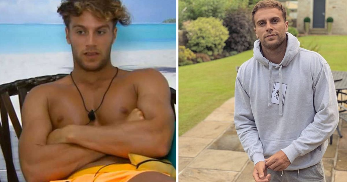 Image may contain: Love Island transformations, Love Island, 2015, series one, Max Morley, then, now, before, after, plastic, cosmetic, surgery, filler, lips, boob job, veneers, teeth, glow up, change, Face, Man, Human, Person