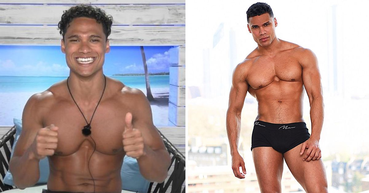 Image may contain: Love Island transformations, Love Island, 2016, series two, Rykard Jenkins, then, now, before, after, plastic, cosmetic, surgery, filler, lips, boob job, veneers, teeth, glow up, change, Photo, Photography, Finger, Thumbs Up, Man, Face, Human, Person