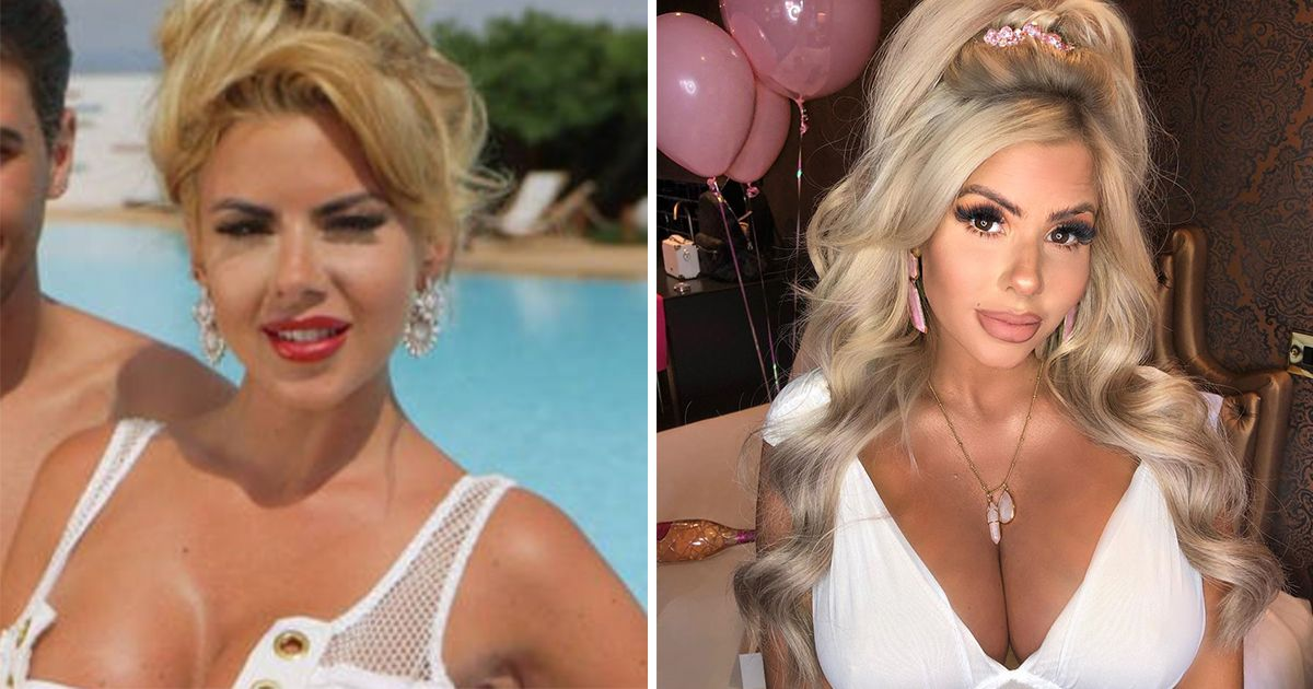 Image may contain:  Love Island transformations, Love Island, 2015, series one, Hannah Elizabeth, then, now, before, after, plastic, cosmetic, surgery, filler, lips, boob job, veneers, teeth, glow up, change, Photo, Portrait, Photography, Smile, Female, Hair, Human, Face, Person