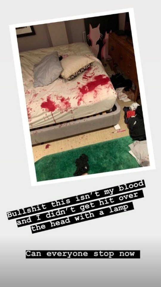 Caroline Flack S Stained Bed Sheets Show Mostly Her Blood