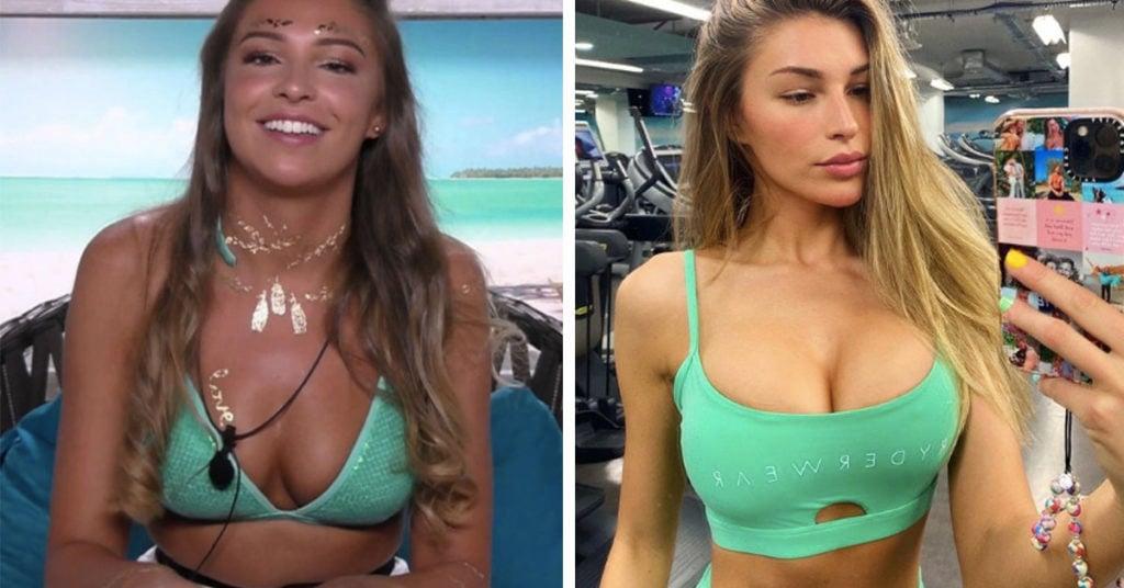 reality stars cosmetic surgery