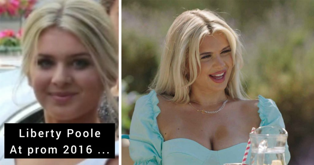 Liberty Poole: Love Island 2021 cast transformations and what cosmetic surgery and procedures Islanders have had done
