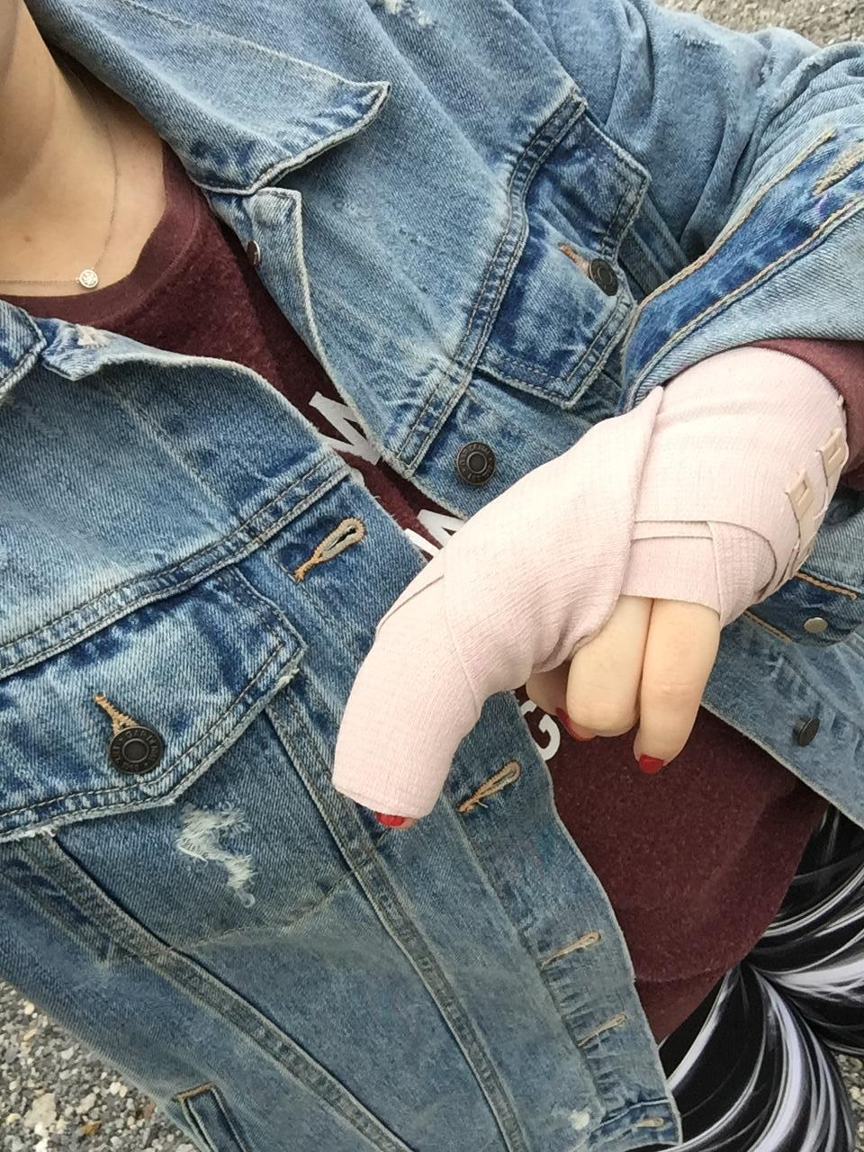 Sasha's hand all bandaged up right after her trip to Urgent Care where they told her she fractured her finger