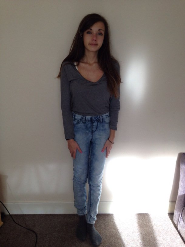 UEA third year Alice recovered from anorexia