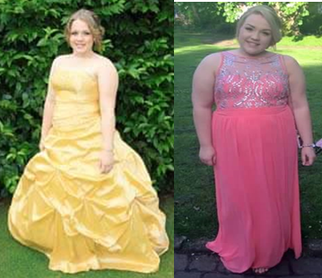 (Left) Hannah At her Prom (right) Hannah at her Uni ball