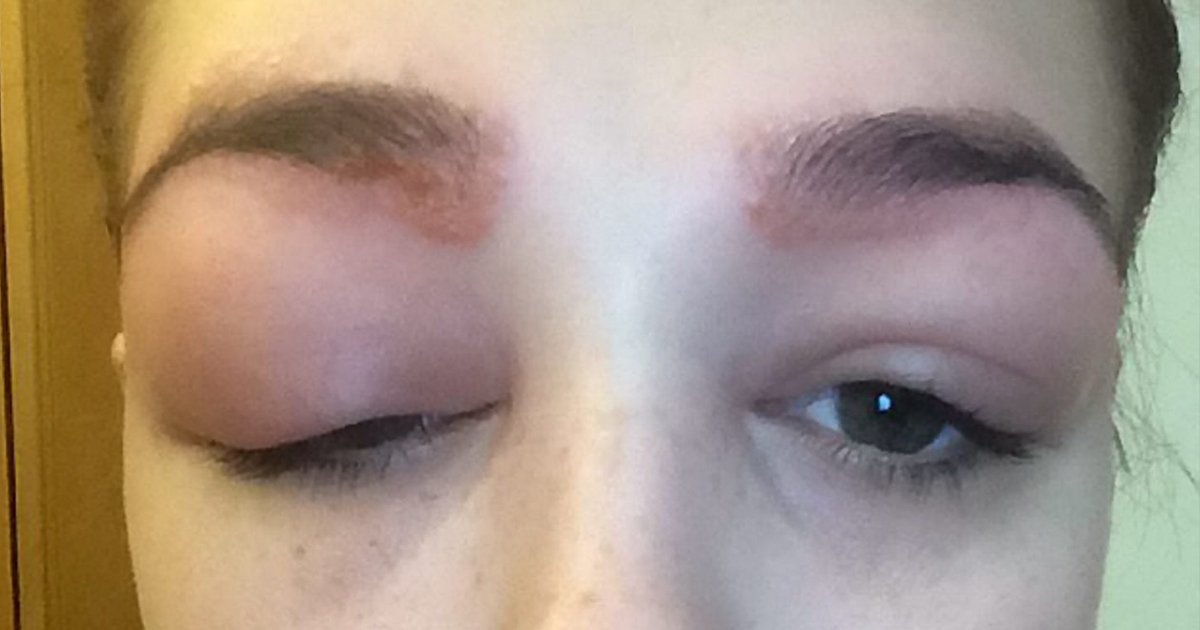 Eyes dyed shut: Teenager left scarred after disastrous ...