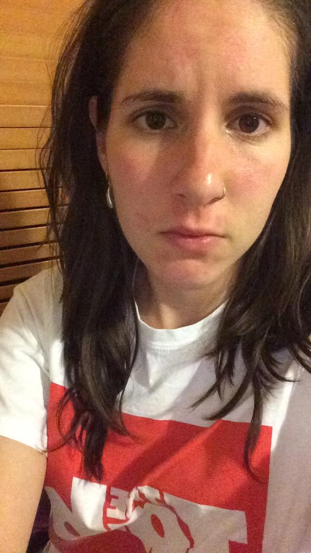 Sara Burned Face