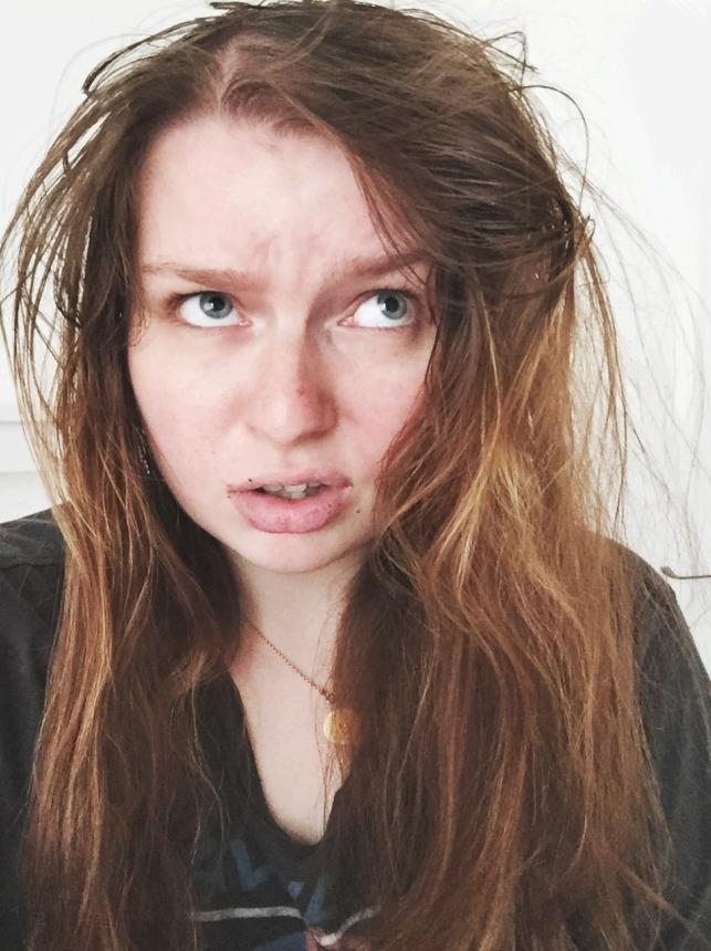 hairloss2